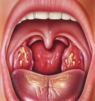 Simptome roșu în gât la copii